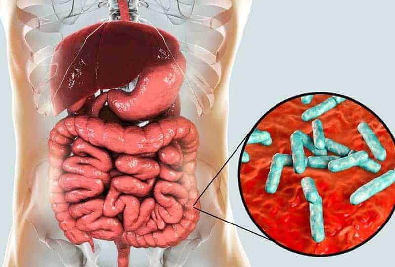 De voornaamste oorzaak van darmproblemen