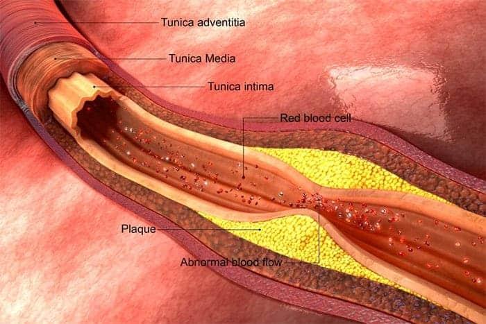 De cholesterol leugen